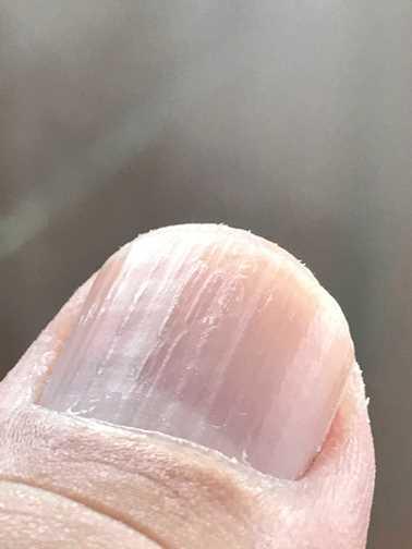 2017.1122親指の爪2 IMG_5268